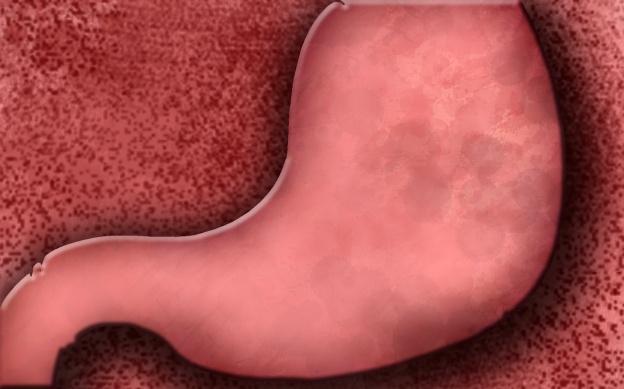 gastritis01