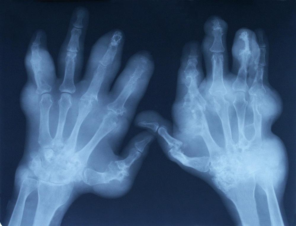Todo sobre la artrosis y la artritis (2/6)