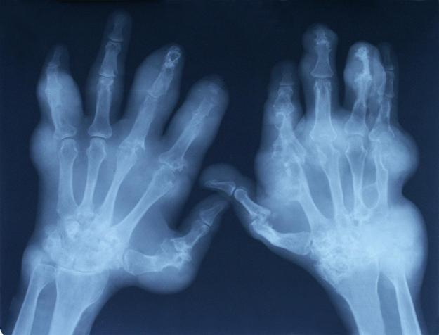 artrosis01